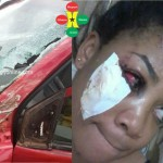 KIA Truck Damages Vicky Zugah's Eye in Dawn Accident (More Photos)