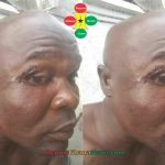 Checkout How Bukom Banku Looks Like After The Fight